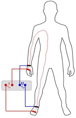 Schematische Darstellung der Bioimpedanzmessung bei einem Mann von rechter Hand zu rechtem Fuß